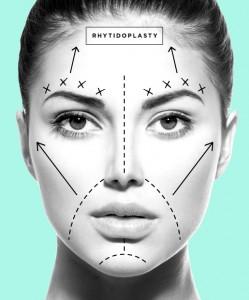 plastic-surgery-05-Rhytidoplasty