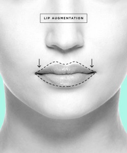 plastic-surgery-06-Lip-Augmentation