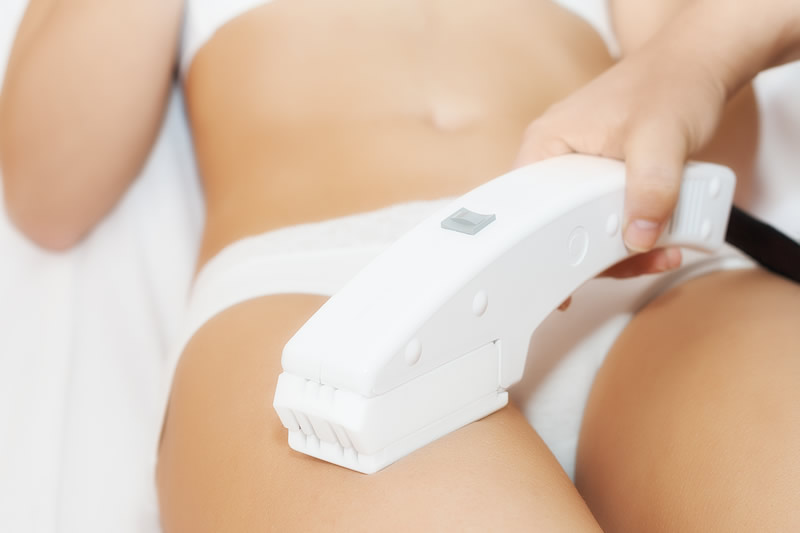 LaserHairRemoval3